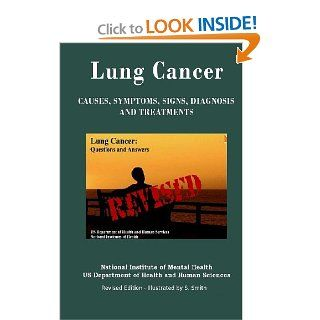 Lung Cancer: Causes, Symptoms, Signs, Diagnosis, Treatments, Stages Of Lung Cancer   Revised Edition   Illustrated by S. Smith (9781469967240): Department of Health and Human Services, National Institutes of Health, National Cancer Institute, S. Smith: Boo